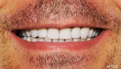 Dentures After Image