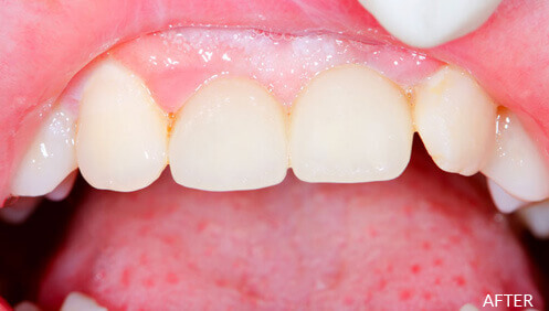 Dental Crowns and Bridges After Image