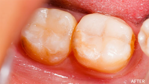 White Fillings After Image
