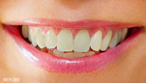 Teeth whitening Before Image