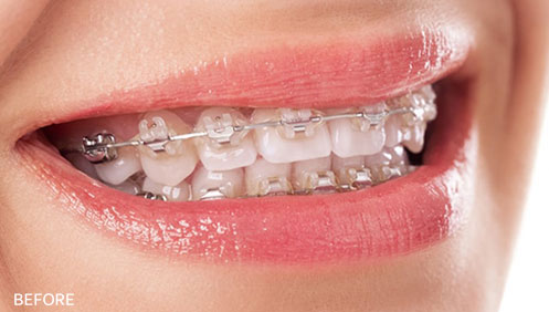 Orthodontic treatment Before Image