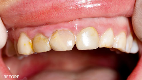 Gum Disease Before Image