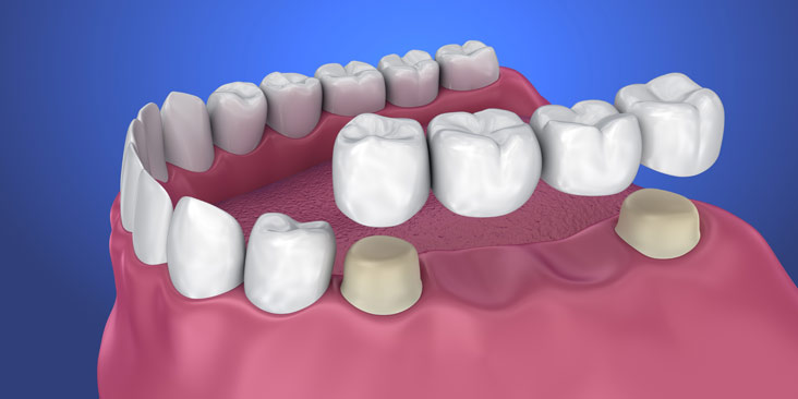 3D illustration of Dental Bridges