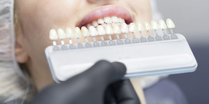 A woman Check and select the color of the teeth