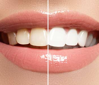 Improve your smile with teeth whitening services in Milton, ON
