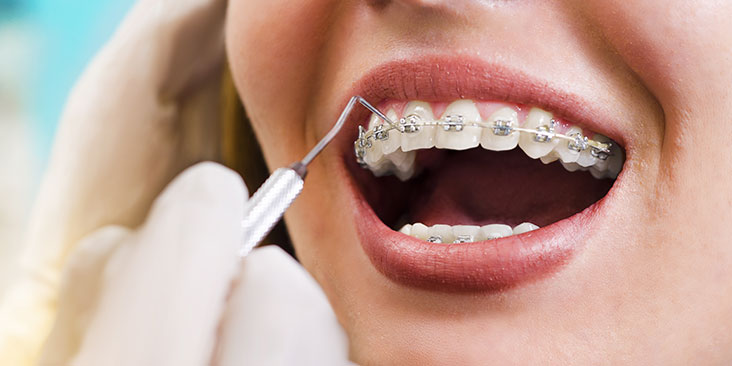 Orthodontic treatments for whole family in Milton, ON