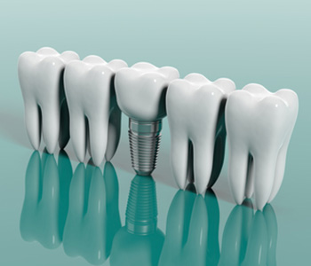 No teeth? No problem! Restore Your Smile with Dental Implants in Milton