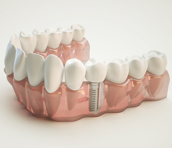 Dentists for Implants in Milton ON area