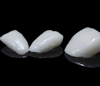 Cosmetic Porcelain Veneers in Milton ON area