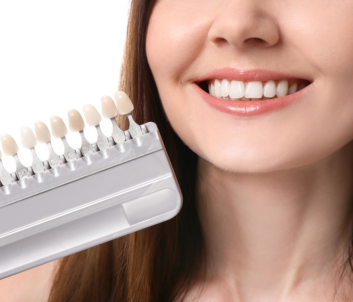 Teeth Veneers Service at Scott and Derry Dental Care in Milton ON Area