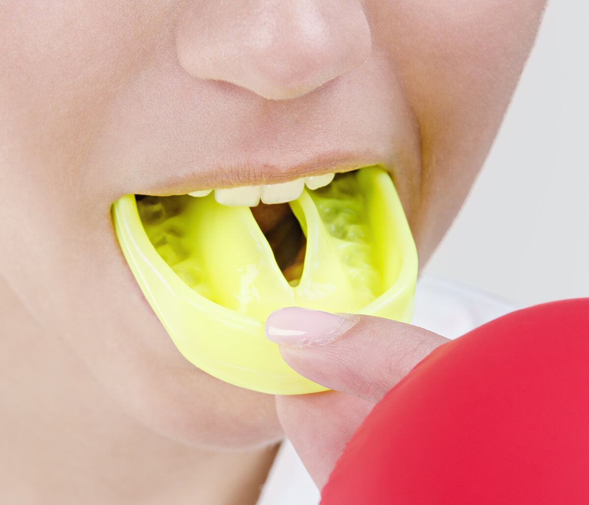 Your Dentist and Custom Sports Mouthguards in Milton ON Area