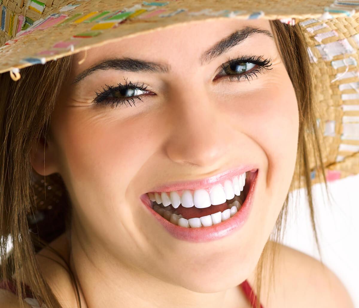 Teeth Veneers Treatment in Milton ON Area