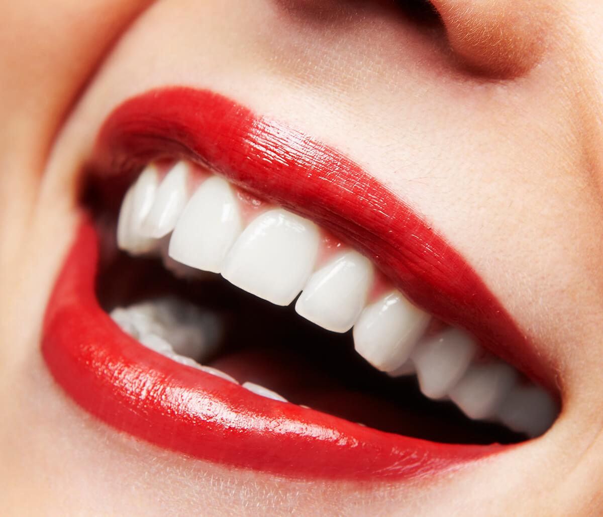 Cosmetic Veneers for Teeth in Milton ON Area