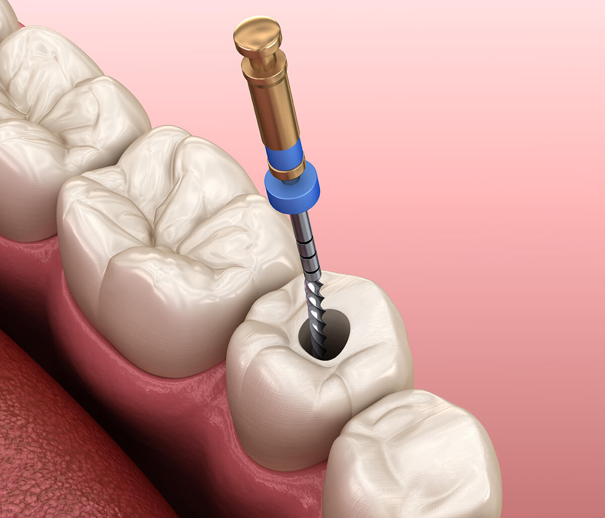 Root Canal Without Crown at Derry Dental Care in Milton ON Area