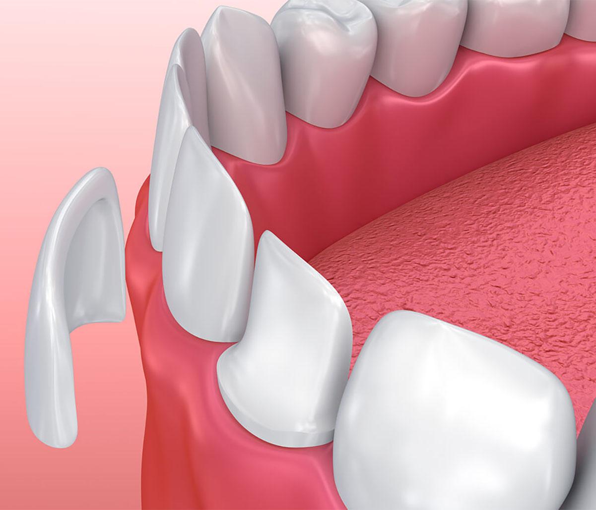 Teeth Veneer Treatment in Milton Area